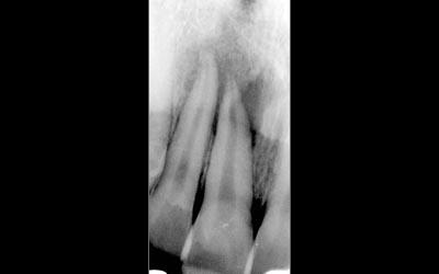 www.eid-paris.com/endodontie/style/diaporama/examens-radiographiques-8.jpg