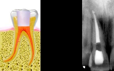 www.eid-paris.com/endodontie/style/diaporama/gutta-8.jpg