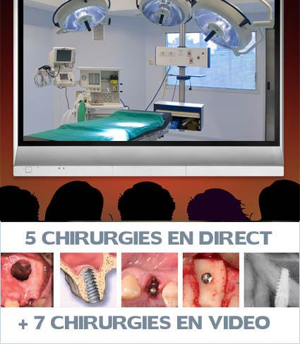 greffes osseuses, la Simplification des Greffes osseuses au maxillaire en Chirurgie pré-implantaire