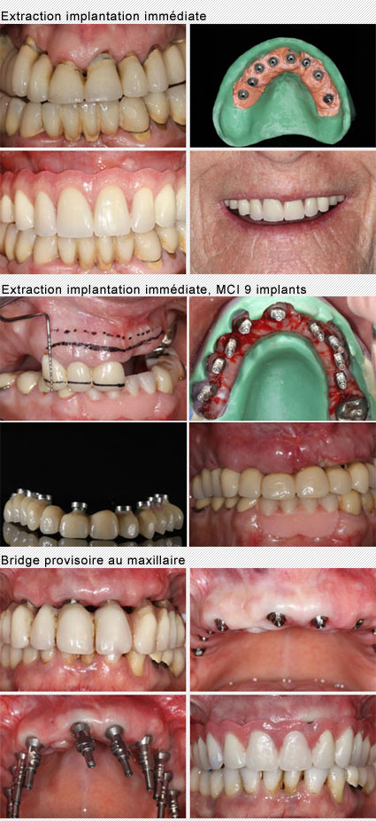 extraction implantation mise en charge immédiate des implants