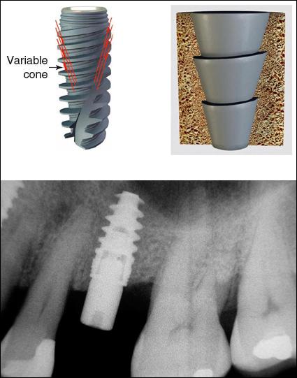 implant auto-forant