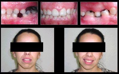 orthodontie vis e esth tique et sourire radieux. Black Bedroom Furniture Sets. Home Design Ideas