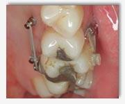 orthodontie les principales techniques des traitements orthodontiques. Black Bedroom Furniture Sets. Home Design Ideas