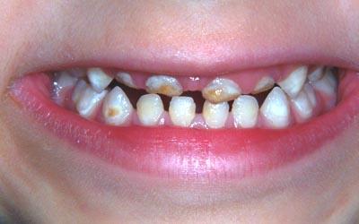 Dentisterie pédiatrique: Les réponses à vos questions (parents) Pedodontie-carie