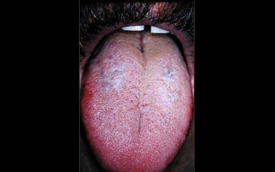 Dermatologie buccale. Lichen plan buccal