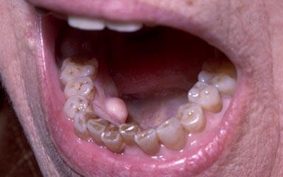 papillomavirus gencive traitement îndepărtarea condilomului papilomului