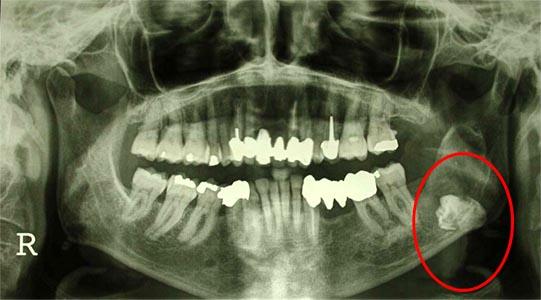 chirurgie osseuse maxillo faciale inclusion des dents de sagesse. Black Bedroom Furniture Sets. Home Design Ideas
